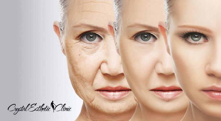 Nechirurgický facelifting čela a očného okolia, krku a podbradku, spodnej časti tváre alebo celej tváre v medicínskom centre Crystal Esthetic Clinic teraz so skvelou zľavou!